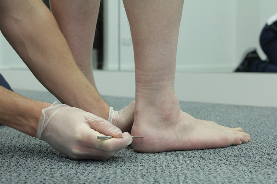 Testing for sensations in the heel.